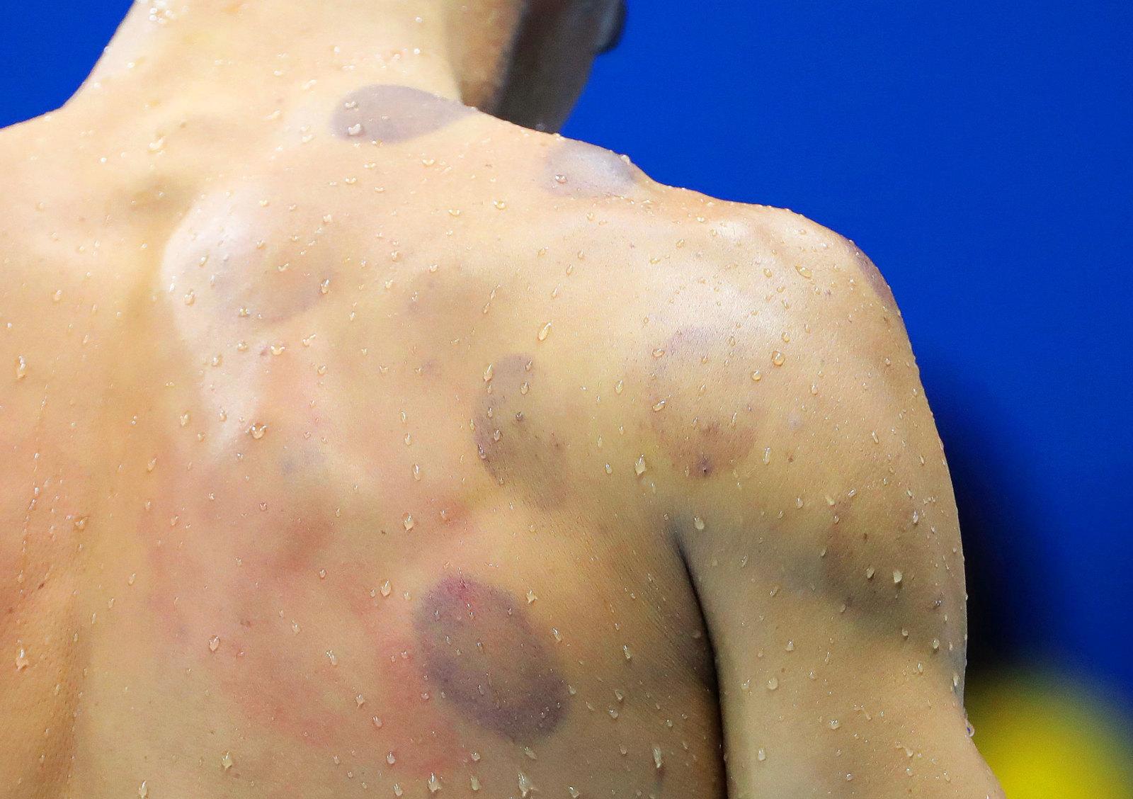 Спина легендарного пловца Майкла Фелпса усыпана следами от медицинских банок