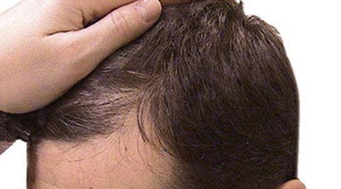 Народные средства от волос под мышками