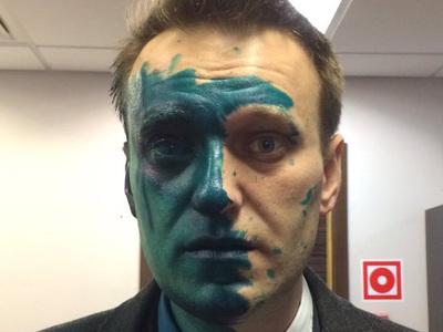 Прокуратура Москвы утвердила возбуждение дела по нападению на Навального