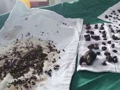Из живота китаянки, жаловавшейся на боли, вынули 200 камней
