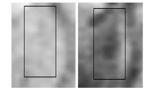 Тёмные пятна на МРТ-снимке животного с ранней стадией болезни Альцгеймера (слева) и их отсутствие у здорового животного (справа)