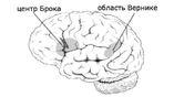 Верхняя височная асимметричная яма расположена в центре Брока — одной из зон мозга, отвечающих за коммуникацию