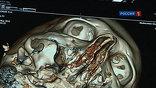 Уникальный электронно-лучевой томограф позволяет видеть даже бьющееся сердце человека в трехмерном изображении