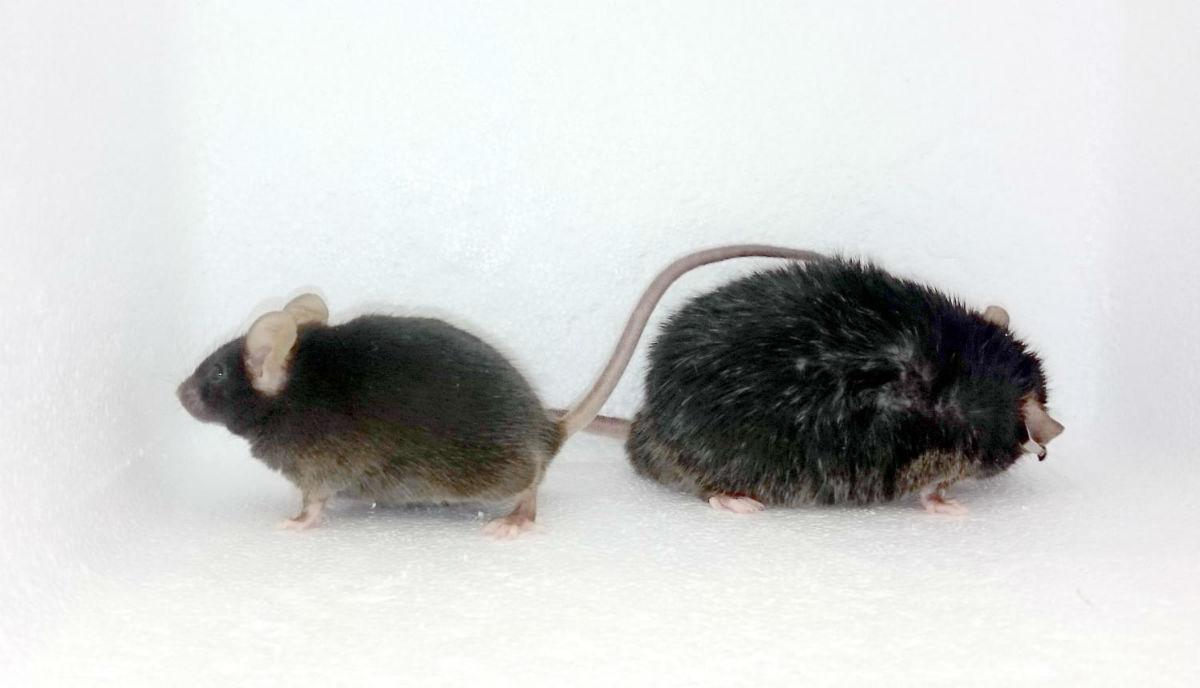 Ученые узнали, что толстые люди недостаточно двигаются из-за изменений вработе мозга