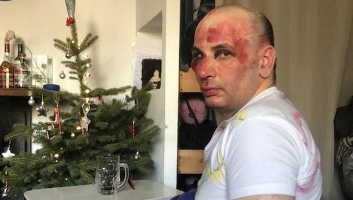 Хулиганы жестоко избили учителя истории в Пятигорске