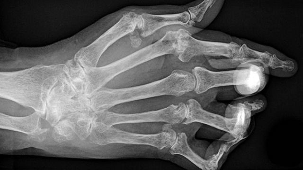 Микрофлора кишечника может вызывать артрит