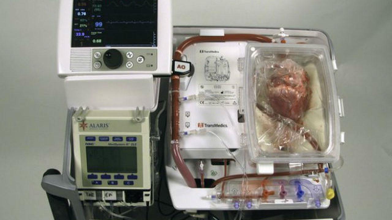 """Хирурги оживили """"мертвое сердце"""" и пересадили его пациентке"""