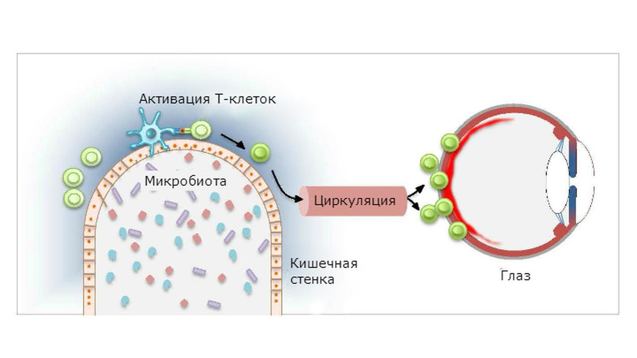 Кишечные микробы могут вызывать заболевания глаз