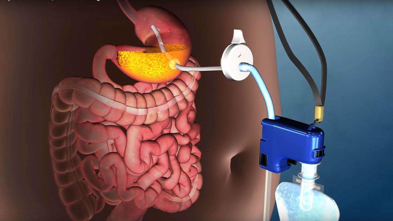 До чего дошёл прогресс: кран в желудке поможет победить ожирение