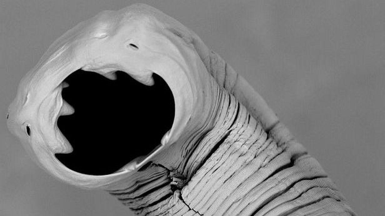 Нет худа без добра: победить астму помогут паразиты
