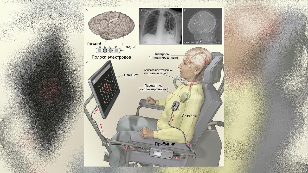 """Парализованная женщина впервые смогла общаться с миром с помощью """"домашнего"""" имплантата"""
