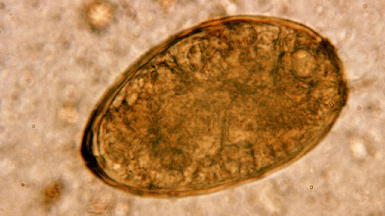 В печени древней мумии обнаружены опасные паразиты