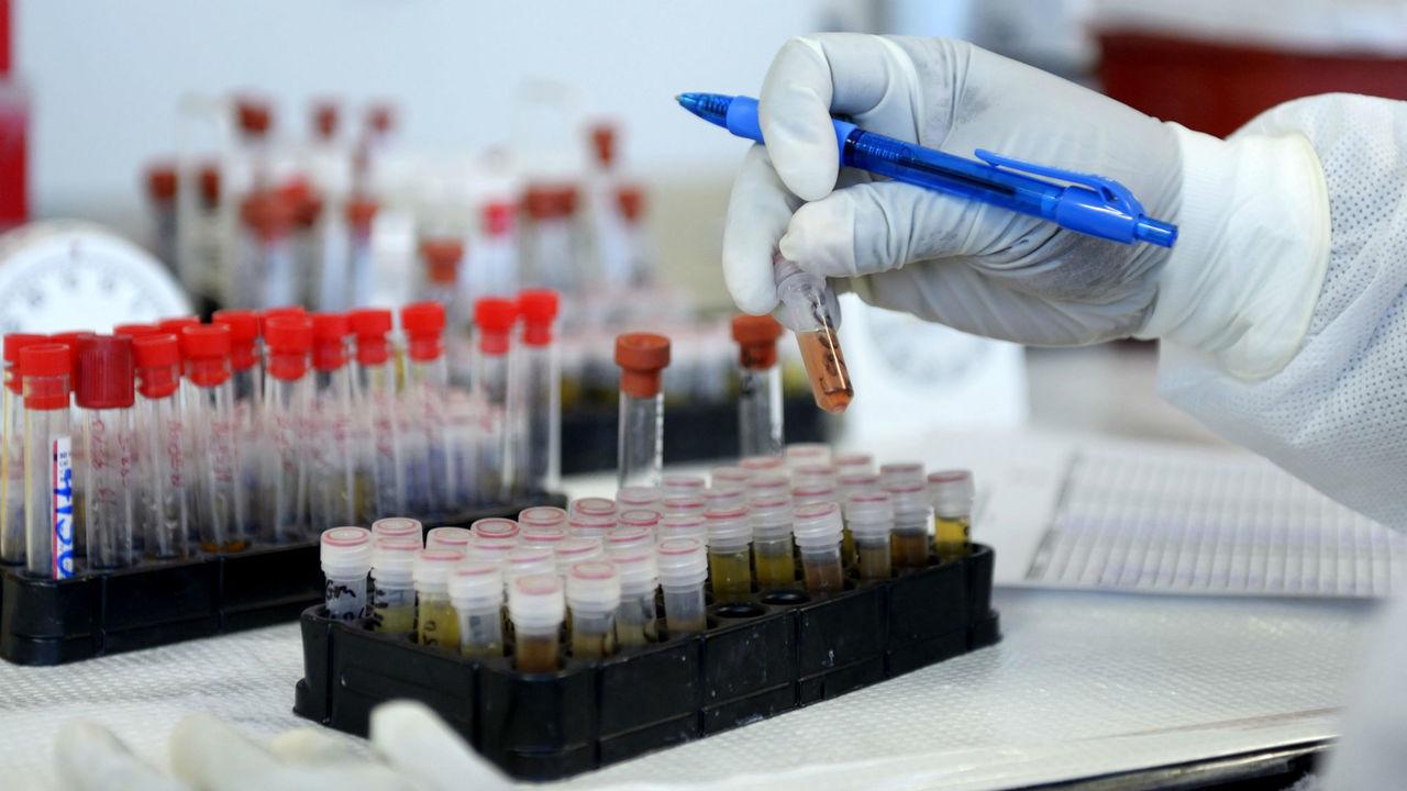 Простой анализ крови выявит белок, указывающий на деменцию