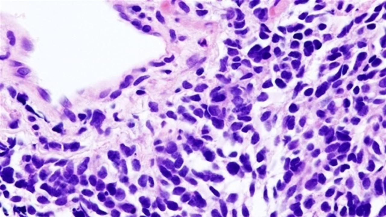 Найден тип сахара, способный замедлить рост раковых опухолей и усилить эффект химиотерапии