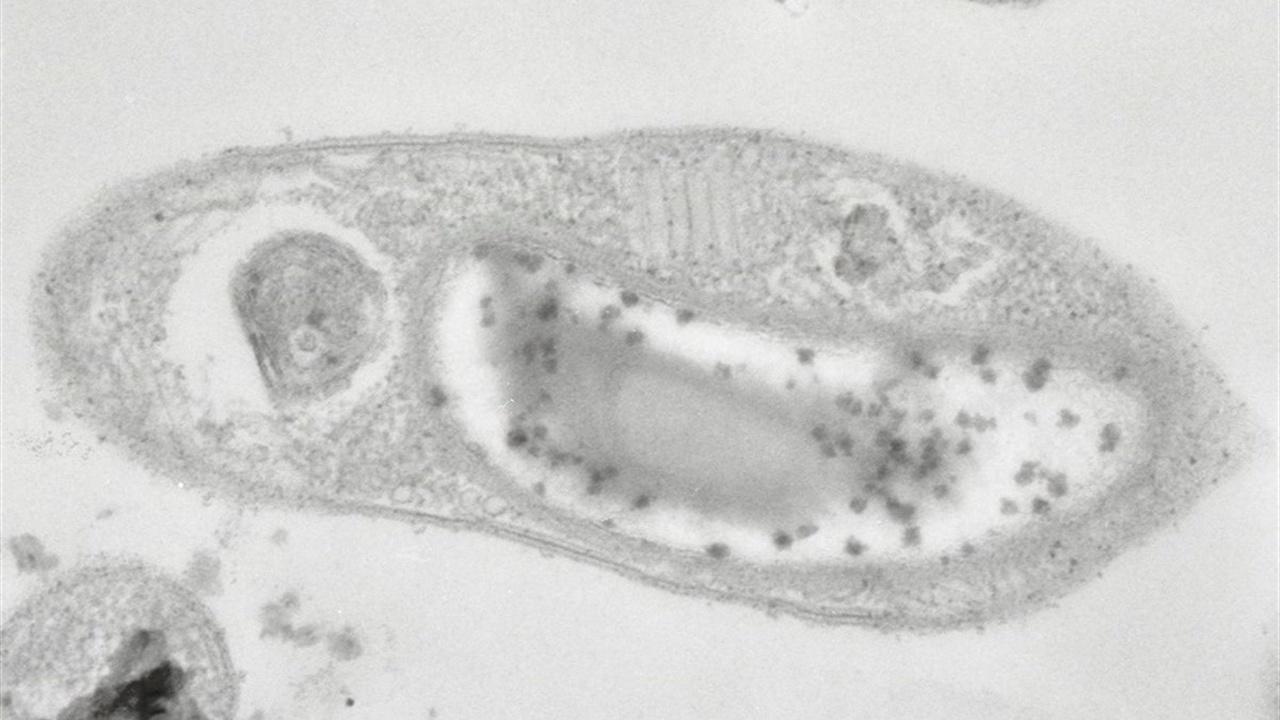 """Неуловимая бактерия, способная выжить на Марсе, """"сдалась"""" томским учёным"""