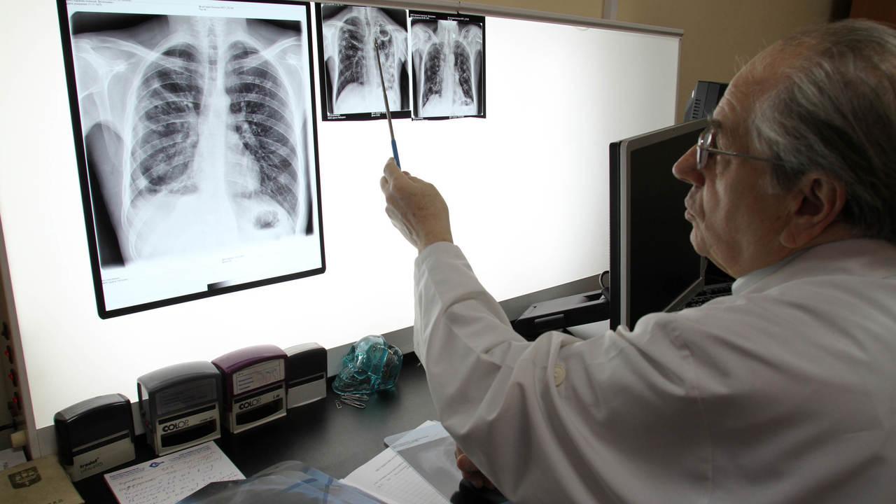 """Новое соединение """"отбирает"""" лекарственную устойчивость у бактерий, вызывающих туберкулёз"""