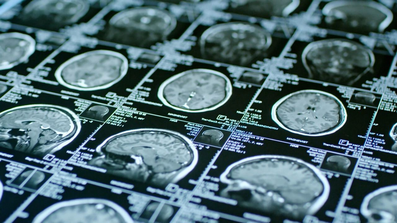 Выявить психическое заболевание поможет обычная МРТ