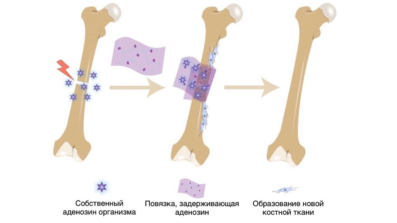 Биологически активная накостная повязка ускорила заживление переломов