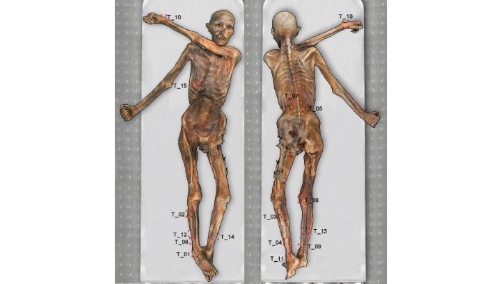 Схема тела Этци с указанием его татуировок. Данное исследование выявило татуировку 15 на правой стороне грудной клетки мумии