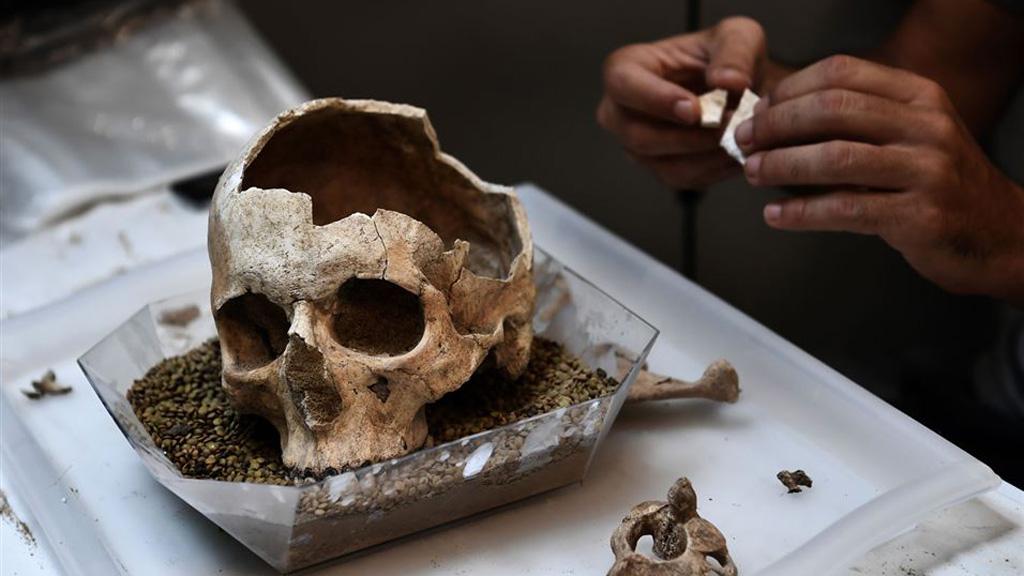 Работа по восстановлению═проломленного черепа из Фалирона. Фото:═Aris Messinis/AFP