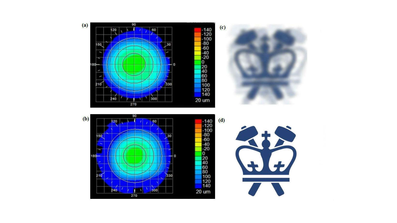 Топография роговицы до и после лечения, а также виртуальное зрение, которое имитирует эффекты индуцированного изменения преломляющей силы.