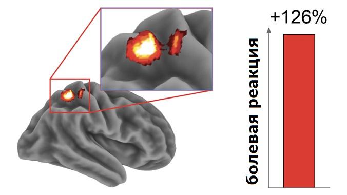 Активность в соматосенсорной коре головного мозга в ответ на болевые ощущения увеличивается на 126% после бессонной ночи.
