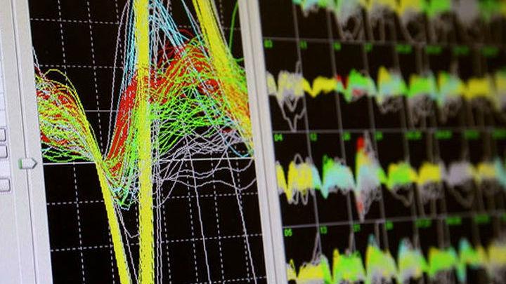 Монитор, на котором показана активность мозга обезьяны, использующей нейрокомпьютерный интерфейс.