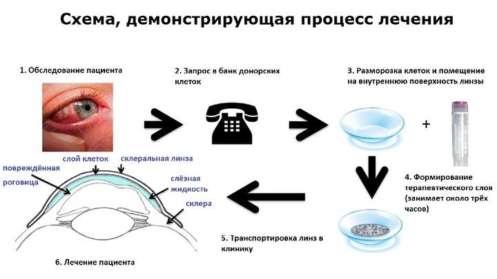 Схема, демонстрирующая процесс лечения и принцип действия новых линз.