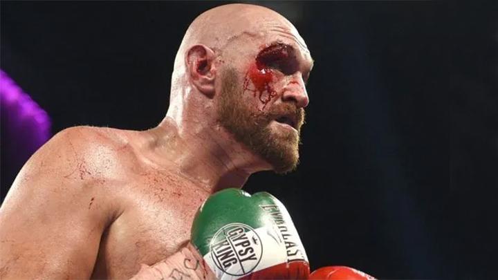 Битва чемпионов-тяжеловесов: боксер Фьюри бросил вызов бойцу Нганну