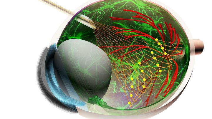 Гибкий сенсор открывает невиданные возможности для изучения сетчатки