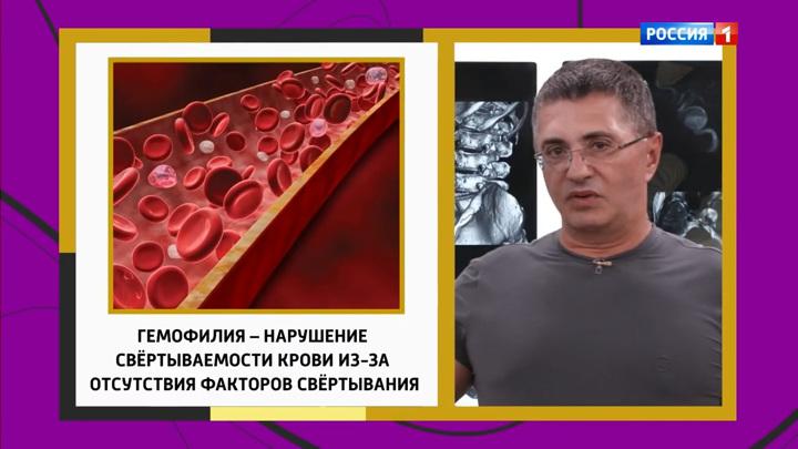 Как связаны синяки и боль в суставах, рассказал Мясников