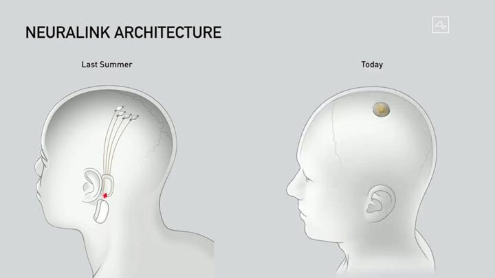 Озвучена ориентировочная стоимость чипирования мозга