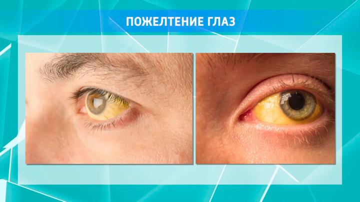 """Кадр из программы """"О самом главном"""".  Офтальмолог объяснил, почему желтеют глаза"""