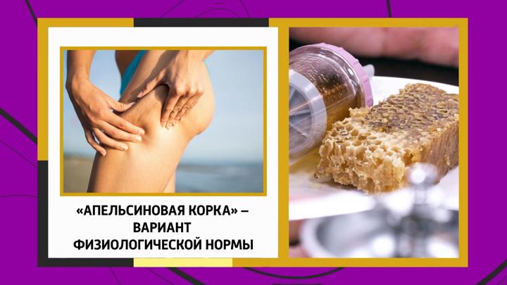Александр Мясников развеял мифы о целлюлите