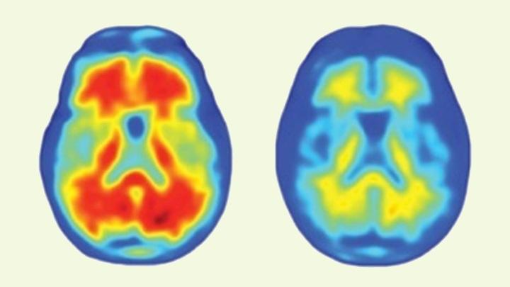 ПЭТ-снимок мозга пациента, прошедшего лечение новым препаратом.