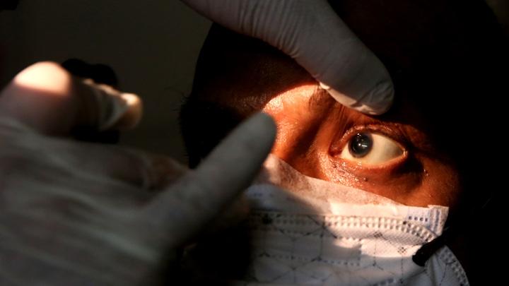"""""""Черная плесень"""": 150-процентный рост числа заболевших в Индии"""