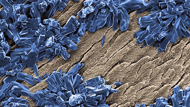 Нанесение на зубы геля с пероксидом карбамида в высоких концентрациях может снизить содержание белков в эмали до 50%.